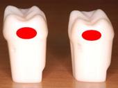 献血ルームで歯科衛生士がグッペリ